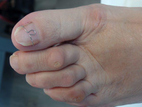 podotherapie sleen nagelbeugel