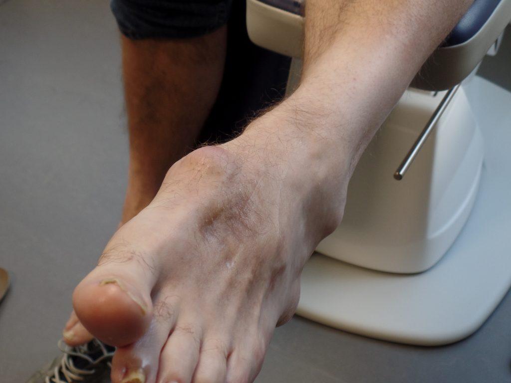 podotherapie sleen trauma voet