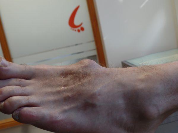 Trauma voet in behandeling bij Lalkens Podotherapie